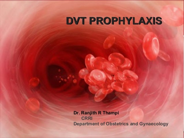 Deep Venous Thrombosis Ranjith Thampi