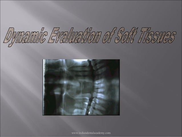 Dynamic evaluation of soft tissues /certified fixed orthodontic courses by Indian dental academy