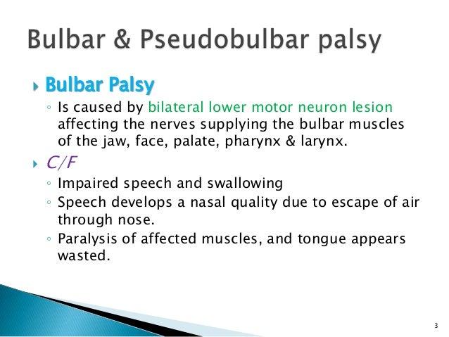 Upper motor neuron palsy upper free engine image for for Bulbar motor neuron disease