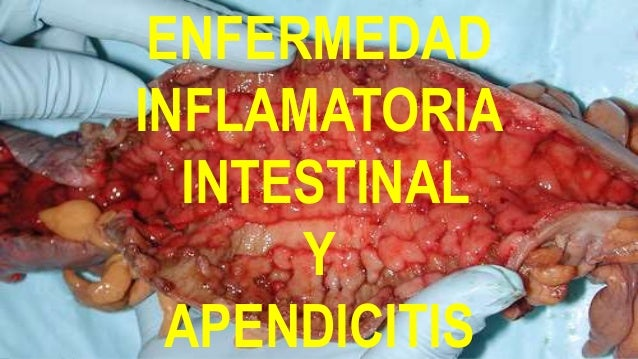 ENFERMEDAD INFLAMATORIA INTESTINAL Y APENDICITIS