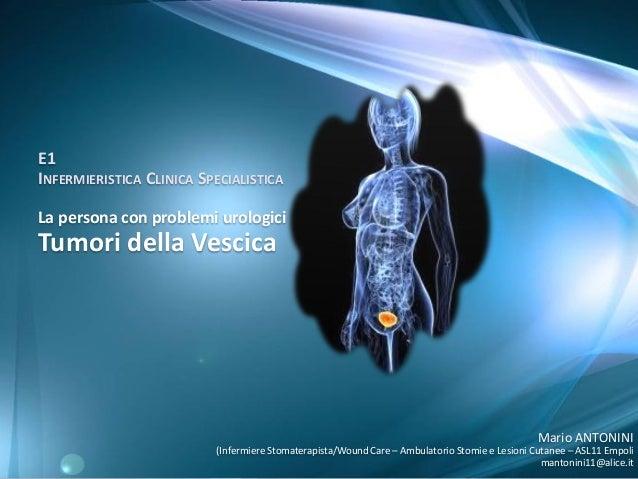 E1 INFERMIERISTICA CLINICA SPECIALISTICA La persona con problemi urologici  Tumori della Vescica  Mario ANTONINI (Infermie...