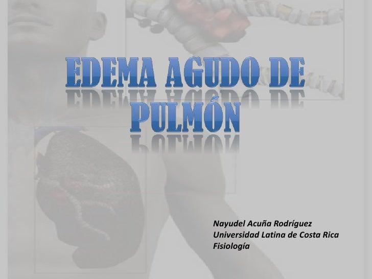 Nayudel Acuña RodríguezUniversidad Latina de Costa RicaFisiología