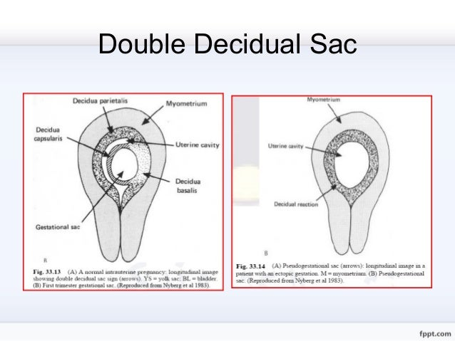 Double Ring Sign Ectopic Pregnancy