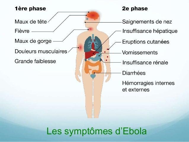 Les symptômes d'Ebola
