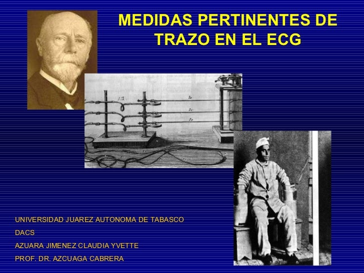 MEDIDAS PERTINENTES DE TRAZO EN EL ECG UNIVERSIDAD JUAREZ AUTONOMA DE TABASCO DACS AZUARA JIMENEZ CLAUDIA YVETTE PROF. DR....