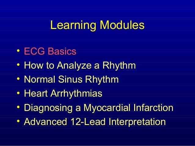 Learning Modules•   ECG Basics•   How to Analyze a Rhythm•   Normal Sinus Rhythm•   Heart Arrhythmias•   Diagnosing a Myoc...