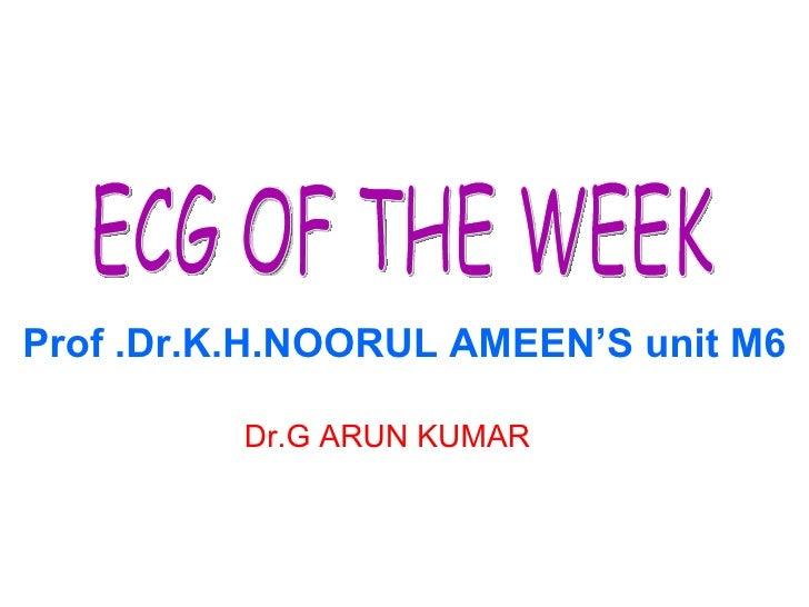 ECG: Ventricular Premature Beats