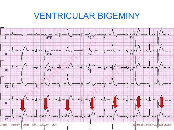 Ventricular Bigeminy Rhythm Ventricular Bigeminy 13