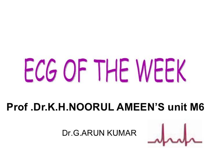 Prof .Dr.K.H.NOORUL AMEEN'S unit M6 Dr.G.ARUN KUMAR ECG OF THE WEEK