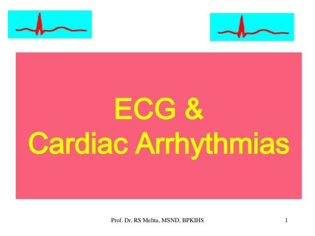 ECG & Cardiac Arrhythmias 1Prof. Dr. RS Mehta, MSND, BPKIHS