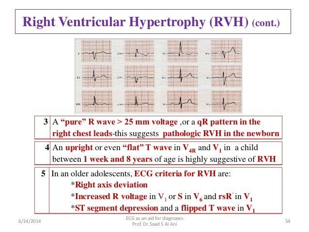 right ventricular hypertrophy ecg pdf