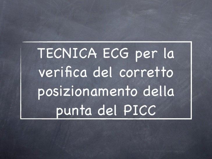 TECNICA ECG per laverifica del correttoposizionamento della  punta del PICC