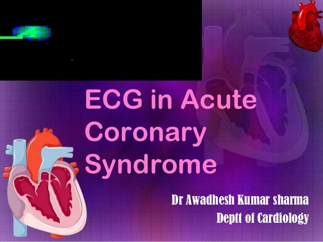 ECG in Acute Coronary Syndrome Dr Awadhesh Kumar sharma Deptt of Cardiology