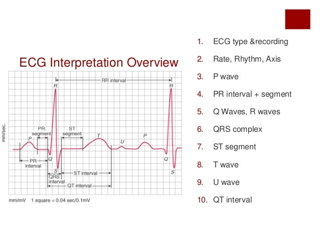 IVLine: A Quick Guide to ECG
