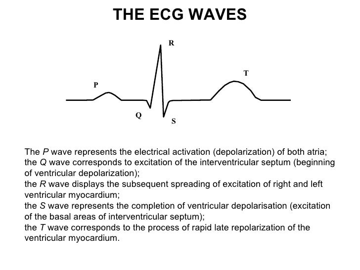 S wave - 12-lead ECG tutorial and basics | Learntheheart.com