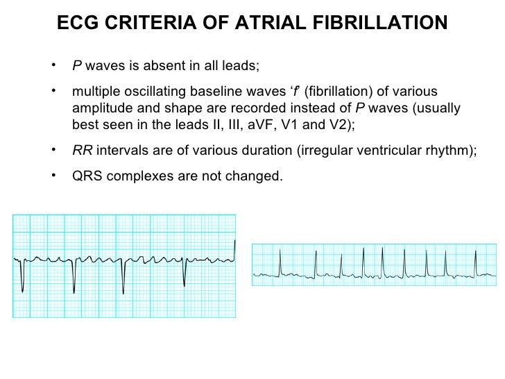Can A Dog Detect Atrial Fibrillation