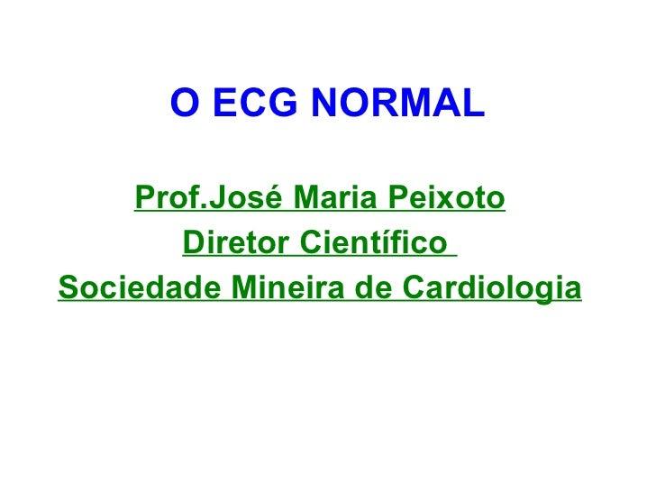 O ECG NORMAL Prof.José Maria Peixoto Diretor Científico  Sociedade Mineira de Cardiologia