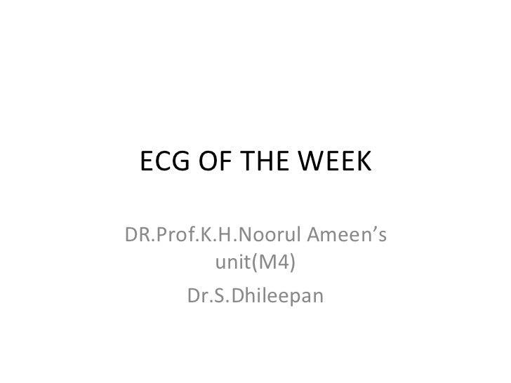 ECG OF THE WEEK DR.Prof.K.H.Noorul Ameen's unit(M4) Dr.S.Dhileepan