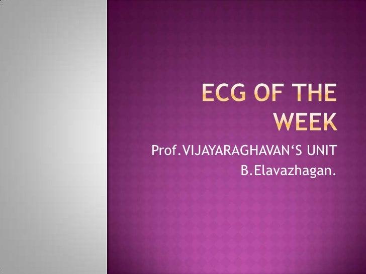 ECG OF THE WEEK<br />Prof.VIJAYARAGHAVAN'S UNIT<br />B.Elavazhagan.<br />