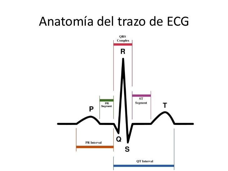 ekg rhythm diagram