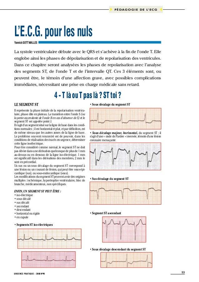 P É D A G O G I E D E L' E C G  L'E.C.G. pour les nuls Yannick GOTTWALLES  La systole ventriculaire débute avec le QRS et ...