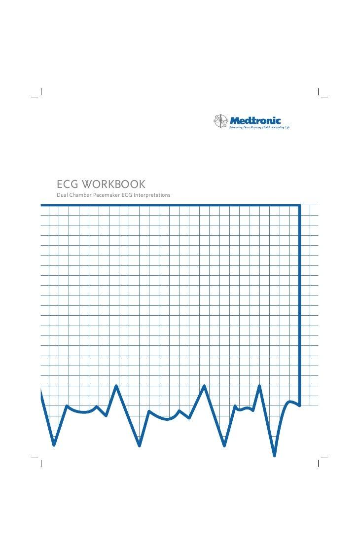 ECG tracing in pacemaker patients