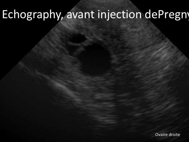 Echography, inspuiting met Pregnyl®  Echo, voor avant injection dePregny                             Ovaire droite
