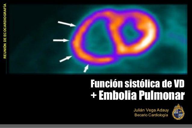 REUNIÓN DE ECOCARDIOGRAFÌA                             Función sistólica de VD                             + Embolia Pulmo...
