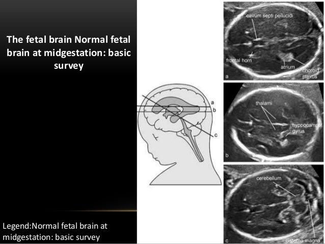 Fetal brain anatomy