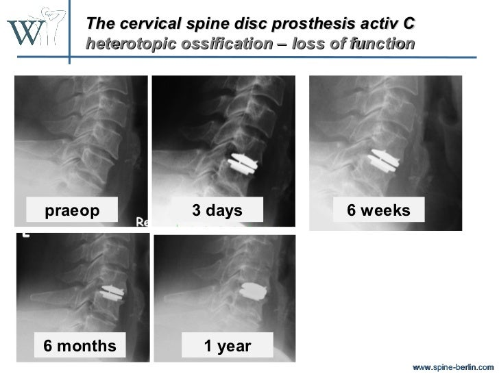 bryan cervical disc prothesis Study design in vitro wear testing of the bryan® cervical disc prosthesis was performed in a cervical spine simulator the biologic response was assessed in.