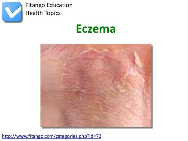 Fitango Education          Health Topics                                Eczemahttp://www.fitango.com/categories.php?id=72