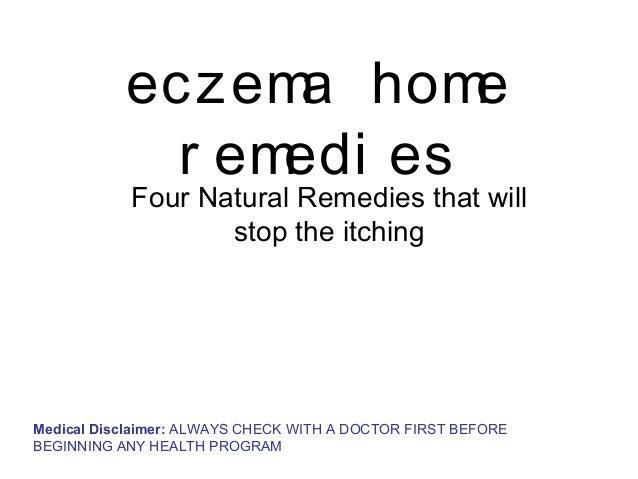Eczema home remedies