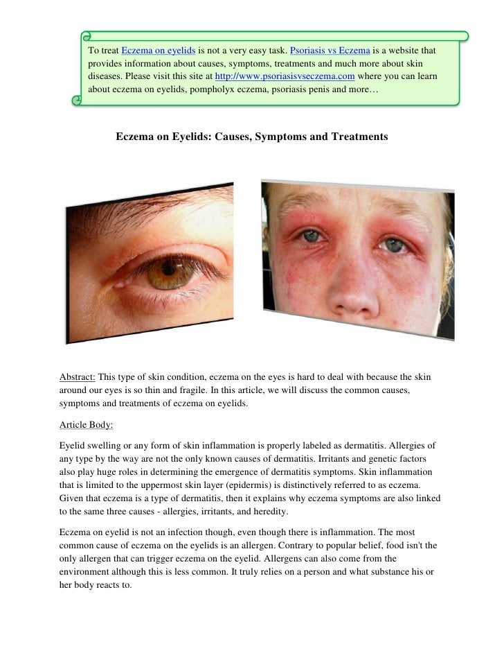 eyelid dermatitis treatments