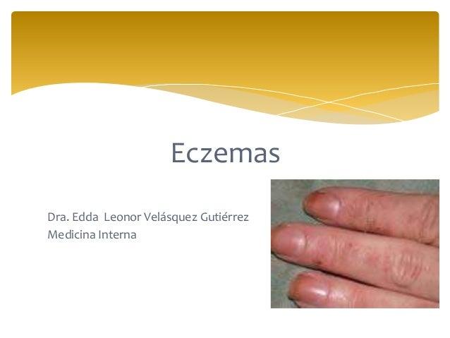 Eczemas ok
