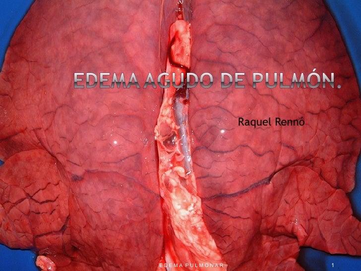 Edema Pulmonar Fisiopatologicamente