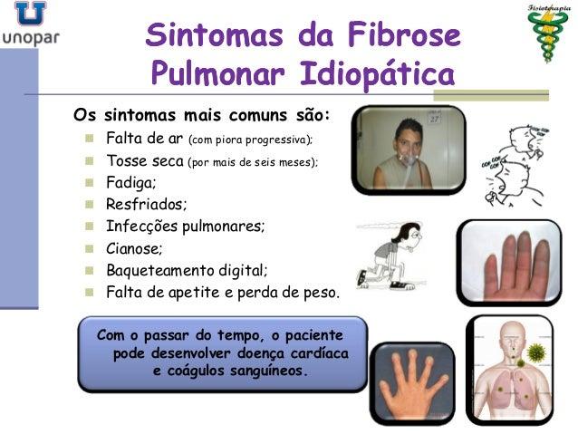 Tratamento fisioterapêutico na incontinência urinária de esforços 1