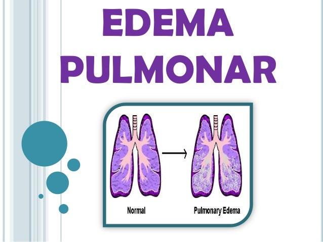 EDEMA PULMONAR  I