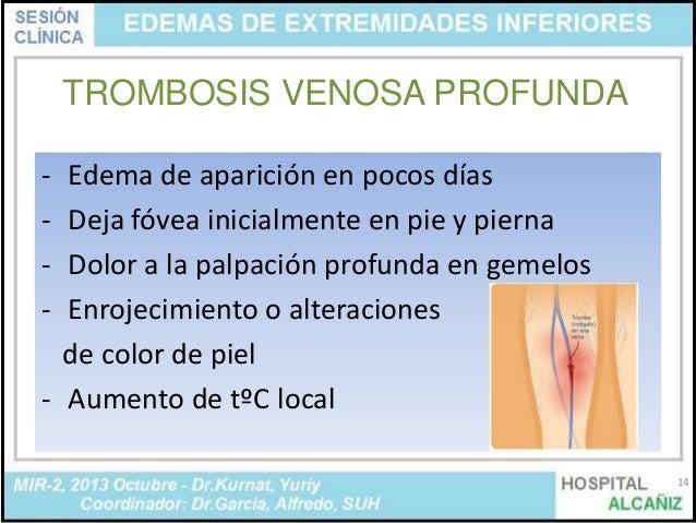 La ayuda a los dolores en las venas de los pies