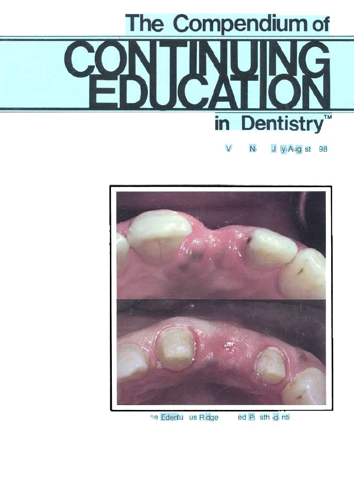 The Edentulous Ridge in Fixed Prosthodontics