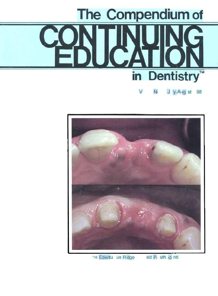 The Edentulous Ridge in Fixed Prosthodontics