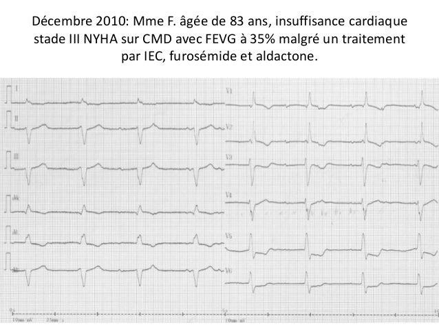 Décembre 2010: Mme F. âgée de 83 ans, insuffisance cardiaquestade III NYHA sur CMD avec FEVG à 35% malgré un traitementpar...
