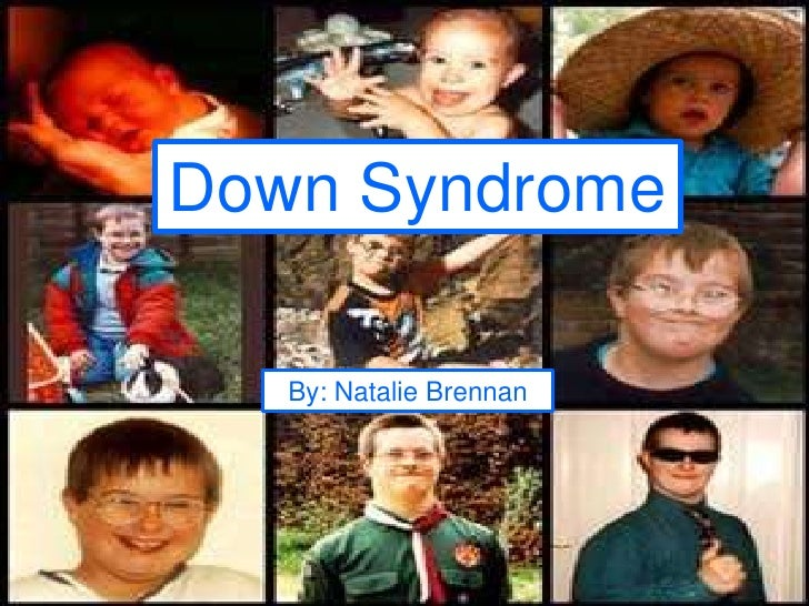 Down Syndrome<br />By: Natalie Brennan<br />
