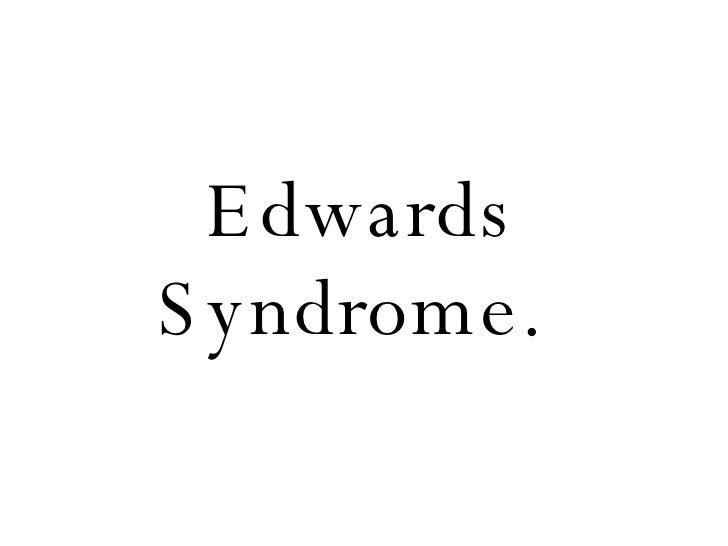 Edwards Syndrome.