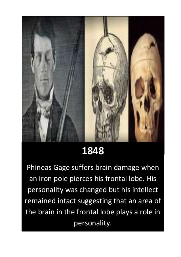 1848 Phineas Gage suffers brain damage when an iron pole pierces his frontal lobe. His personality was changed but his int...