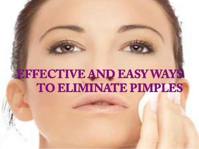 Effective and Easy Ways to Eliminate Pimples