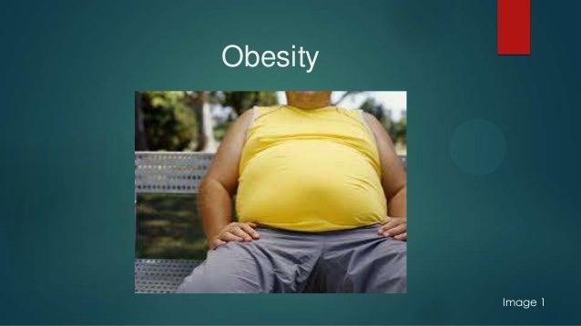 Obesity Image 1