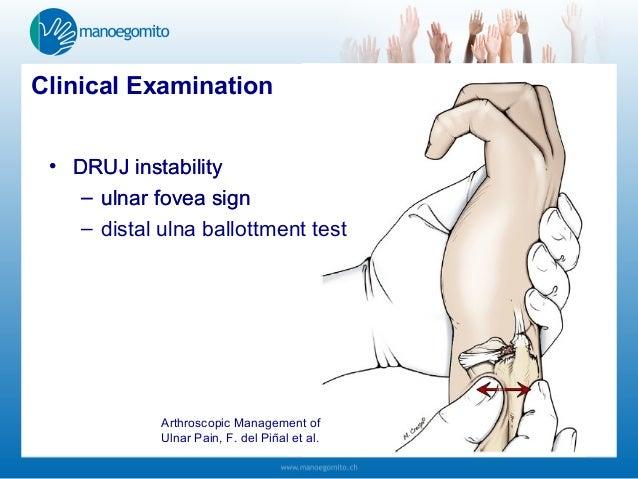 Acute Triangular Fibrocartilage Complex Injuries ...