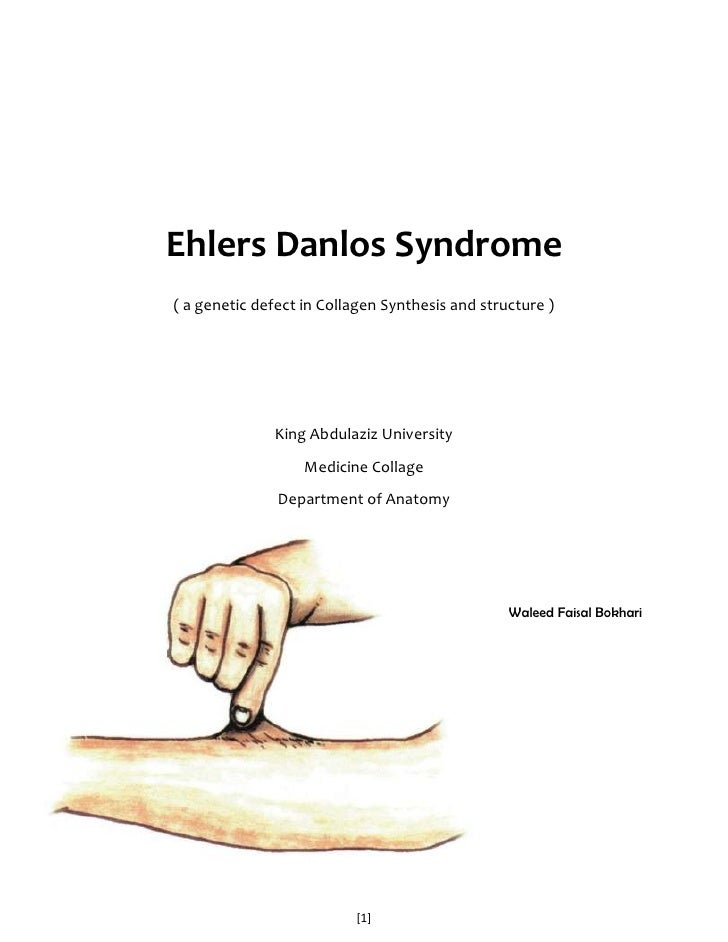 analysis and description of ehlers danlos syndrome Refining patterns of joint hypermobility, habitus, and orthopedic traits in joint hypermobility syndrome and ehlers-danlos syndrome, hypermobility type 10/2017 10.