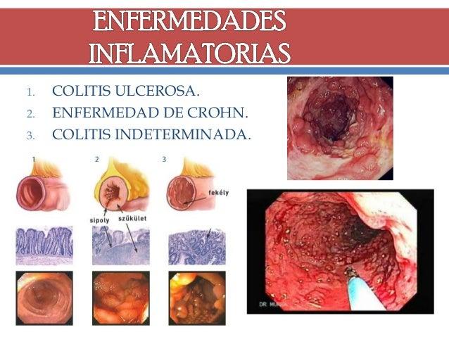 1. 2. 3.  COLITIS ULCEROSA. ENFERMEDAD DE CROHN. COLITIS INDETERMINADA.