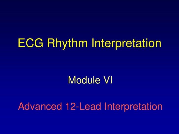 ECG Rhythm Interpretation          Module VIAdvanced 12-Lead Interpretation